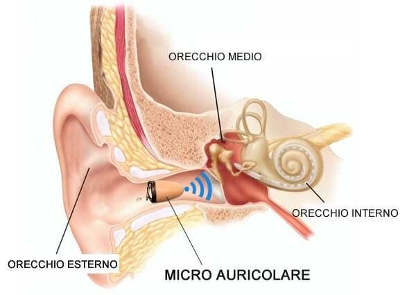 Micro auricolare nell'orecchio